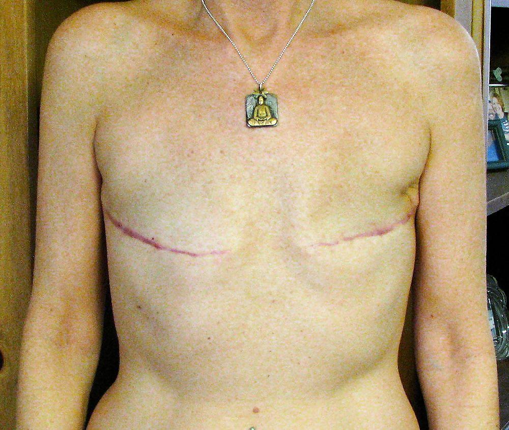 Amputee Mastectomy Handicapped #20496712