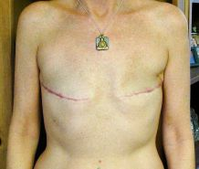 Amputee Mastectomy Handicapped