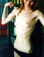Anorexic girls ... something different for me :-( Porn Pics #2616581