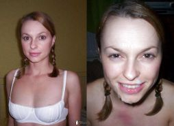 Before After Special Facial - F94