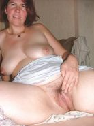 Hairy mature spreading #20397358