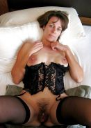 Hairy mature spreading #20397525