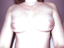 Large, huge nipples from matures and young girls #29409369