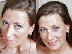 Before-After Facials #34694544